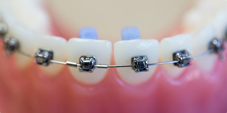 how do damon braces work