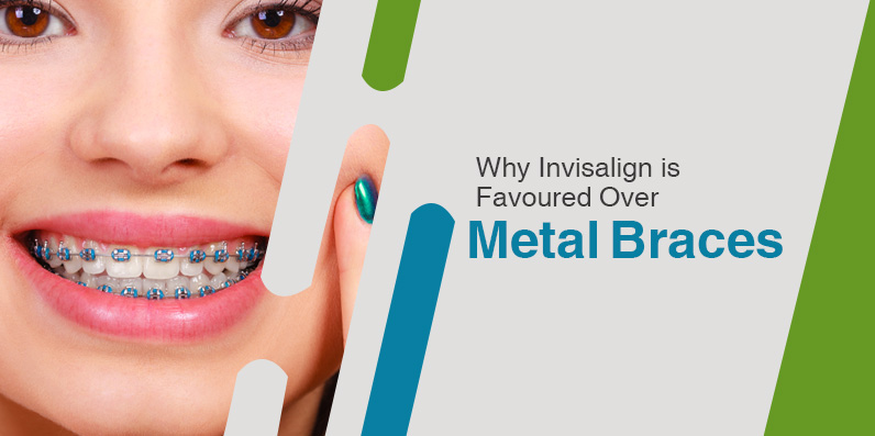 why invisalign is favoured over metal braces_big_image