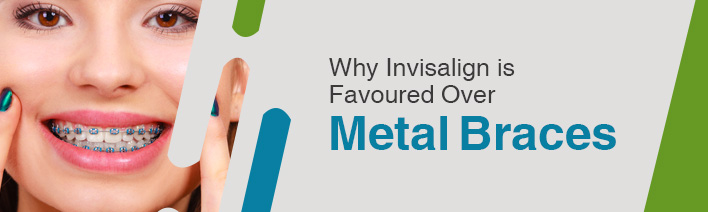 why invisalign is favoured over metal braces_small_image