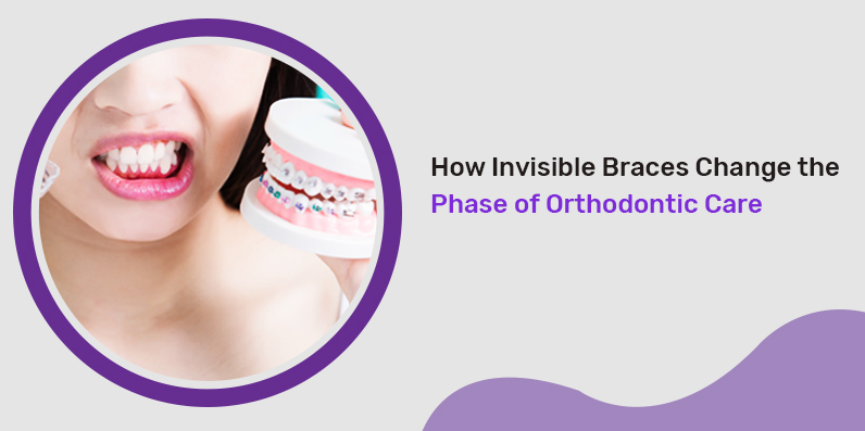how invisible braces change the phase of orthodontic care big image